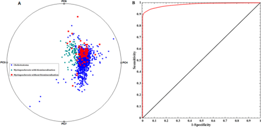 (A) Multi-dimensional radial visualization plot of selected principal component scores obtained from the entire spectral dataset. The plot illustrates the clustering behavior of the data points corresponding to the myringosclerosis sites that exhibit mineralization. (B) ROC curve for PLS-DA derived algorithm for the diagnosis of mineralized myringosclerosis sites. The ROC curve in red plots sensitivity versus (1-specificity) for the PLS-DA decision algorithm as the discrimination threshold is varied. For comparison, the ROC curve of two indistinguishable classes (represented by the solid black line) is also shown.