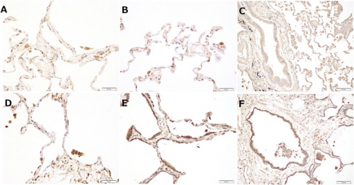The immunohistochemical expression of matrix metalloproteinase (MMP)-10 in idiopathic pulmonary fibrosis (IPF) lung tissue and control lung tissue. (a-c) The expression of MMP-10 is weakly positive in alveolar epithelial cells and macrophages in control lung tissue. (d-f) In IPF lung tissue, MMP-10 is expressed predominantly in alveolar macrophages, alveolar epithelial cells, and peripheral bronchiolar epithelial cells. The staining intensity of MMP-10 in IPF lung tissue is stronger compared with control lung tissue