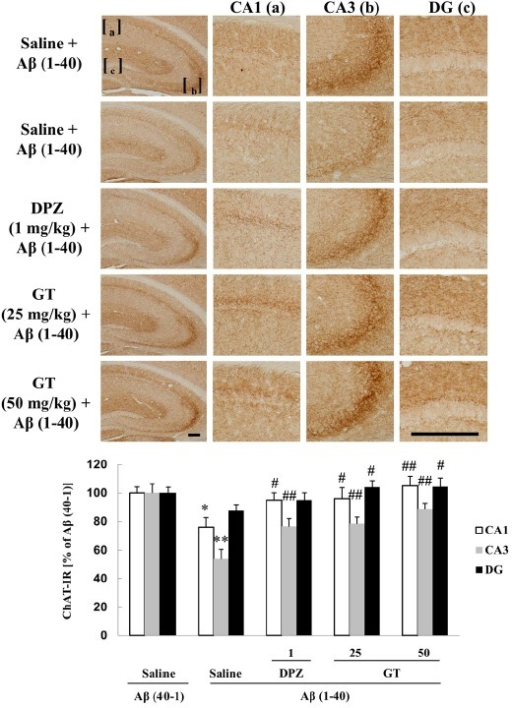 Effect of gintonin (GT; 25 or 50 mg/kg, p.o.) on the Aβ (1–40)-induced decrease in choline acetyltransferase-immunoreactivity (ChAT-IR) in the hippocampus of the mouse. Donepezil (DPZ; 1 mg/kg, i.p.) was used as a reference drug. Each value is the mean ± S.E.M of five mice. *P < 0.05, **P < 0.01 vs. Sal + Aβ (40-1), #P < 0.05, ##P < 0.01 vs. Sal + Aβ (1–40) (one-way ANOVA followed by Fisher's PLSD test). Scale bar = 200 μm.