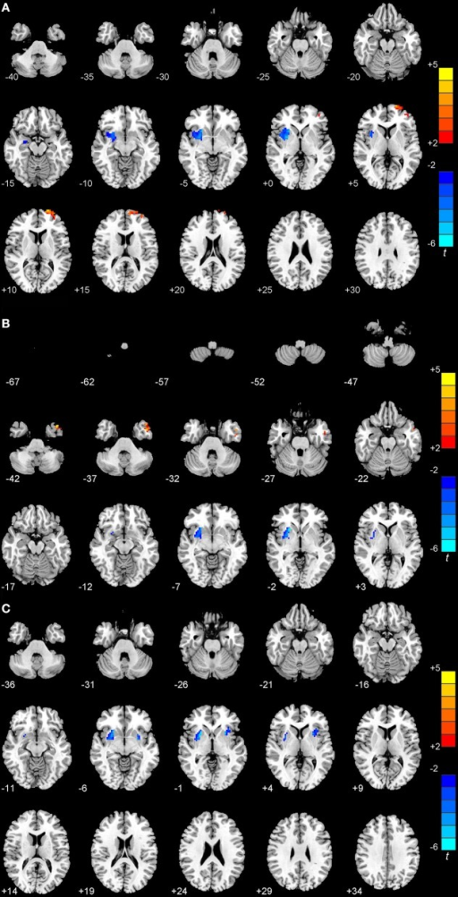 Statistical maps showing the ReHo differences among patients with EOPD or LOPD and normal controls (P < 0.01, FWE corrected). (A) Compared with LOPD, EOPD showed significantly deceased ReHo values in the right putamen and increased ReHo values in the left superior frontal gyrus. (B) Compared with younger normal controls, EOPD showed significantly deceased ReHo values in the right putamen and increased in the left inferior temporal gyrus. (C) Compared with older normal controls, LOPD exhibited decreased ReHo values in the right putamen and left insula. Red and blue denote higher and lower ReHo values, respectively, and the color bars indicate the T-value from post-hoc analyses between each pair of groups.