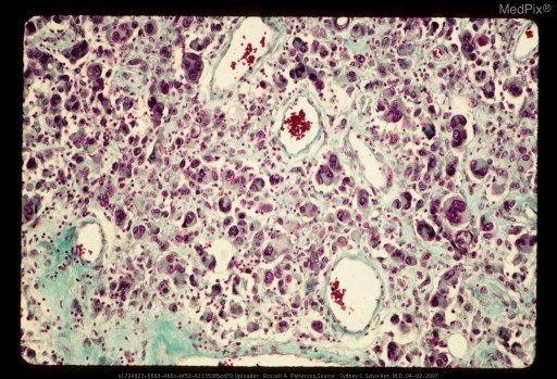 Pilocytic cerebellar astrocytoma