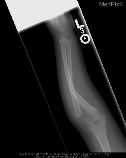 Frontal and lateral radiographs representing a Monteggia forearm fracture involving an ulnar fracture with dislocation about the radiohumeral joint.