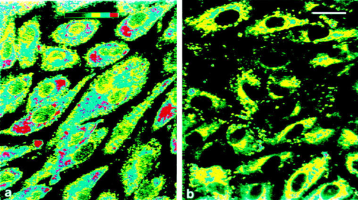 Immunocytochemical staining for tPA in first  passage control HUVEC  (left) and in HUVEC after  induction of regulated secretion by 1 NIH U/ml of human α-thrombin for 3 min  (right). Cells were fixed and  stained as described in Materials and Methods. The figures show a semiquantitative  measurement of fluorescence  intensity, using pseudocolor  banding. Note that after  thrombin treatment, some  cells have lost all granular  tPA staining, while the other  cells show a reduced staining  intensity. Bar, 25 μm.