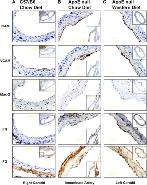 Matrix remodeling and inflammatory gene expression in vivo. C57/B6 mice were fed a chow diet (A), male ApoE  mice were fed a chow diet for 10 wk (B), and ApoE  mice were fed a Western diet for 10 wk (C). Mice were killed and the indicated arteries were removed and embedded in paraffin. Serial sections were stained for FN, FG, ICAM-1, VCAM-1, and Mac-2 and shown at high magnification, with lower magnification views of the entire vessels shown as insets.