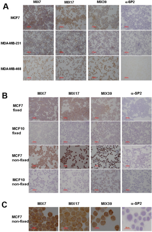 Immunohistochemical staining of tumor cells. (a) The scFvs MIX7, MIX17 and MIX39 show significant staining of the MCF7, MDA-MB-231 and MDA-MB-468 breast carcinoma cells. No staining is observed with the negative control (irrelevant anti-SP2 antibody). (b) Staining of breast carcinoma cells in comparison with normal breast epithelial cells MCF10-2A. The selected antibodies stain the non-fixed cells more intensively than the fixed MCF7 cells, but not the MCF10-2A cells. Weak background is observed only for MIX39 scFv when it interacts with MCF10-2A cells. No staining is observed for negative control anti-SP2 antibody. (c) Staining non-fixed MCF7 cells, magnification ×60.