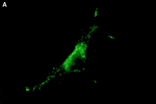 Subcellular localization of Nip3 and Nip3163. Rat-1 cells were transfected with HA-Nip3 and stained with anti-HA antibody using FITC (A)  and the mitochondrial protein marker anti-HSP60 antibody using Cy3 (B). The stained images were combined to compare the staining pattern of both  proteins (C) and their coincidence is indicated by the conversion of green FITC and red Cy3 stain to yellow thoughout the cell cytoplasm. HA-Nip3163  was expressed in Rat-1 cells then stained with anti-HA antibody (D), or anti-HSP60 antibody (E) and shown as a combined image using antibodies (F),  as described above.