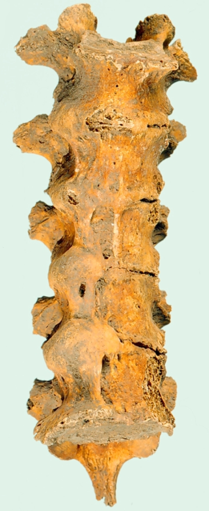 Photograph of skeletal remains from a 57 year-old-female (grave 44) showing ossification of the anterior longitudinal ligament exhibiting the typical 'flowing wax' phenomenon