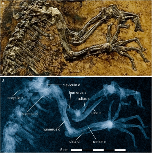 Shoulder girdle and forelimb of Darwinius masillae, new genus and species.Photograph (A) and X-ray image (B) show the specimen preserved on plate A (Fig. 1). Note excrescence at the distal end of the right forearm, and a fracture of the basal phalanx of the left pollex (details are shown in Fig. 9).