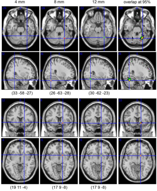 Comparison of the dyslexic subjects' brain classifications for data smoothed with a 4, 8 or 12 mm FWHM isotropic Gaussian kernel (from left to right). For the three sizes, significant clusters of differences were obtained in the right cerebellar declive (corrected p values ~0; cluster size under H0 for voxels with 100% of difference = 0.36 +/- .05 at 4 mm smoothing, 0.531 +/- 0.07 at 8 mm smoothing, 1.33 +/- .09 at 12 mm smoothing). By contrast, only one cluster was observed in the right lentiform nucleus with a 8 mm smoothing kernel vs. 1 voxel only with a 4 mm or 12 mm smoothing kernel. As illustrated, the coordinates of the centres of mass (or single voxel) differed with the smoothing kernel. However, by lowering the threshold of the PMD from 100% to 95%, there is a clear overlap between the three PMD (right hand side), confirming the robustness of the results.