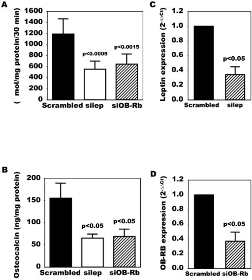 Modulation of alkaline phosphatase and osteocalcin release in OA Ob by inactivating leptin or leptin signaling. OA Ob were treated with siRNA for either leptin or OB-Rb or a scrambled RNA as described in Material and methods. Cells were then used to determine alkaline phosphatase activity and osteocalcin release. A) Results of alkaline phosphatase activity in response to leptin or OB-Rb siRNA treatments. B) Results of osteocalcin release in response to leptin or OB-Rb siRNA treatments. C) Leptin expression in response to siRNA. D) OB-Rb expression in response to siRNA. Results are the mean ± SEM of n = 6 OA Ob preparations.