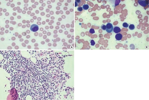 Findings of peripheral blood smear and bone marrow study. (A) The peripheral blood smear shows a plasmacytoid lymphocyte (Wright stain, ×1,000). (B) The bone marrow aspirate contains 2.1% plasma cells (Wright stain, ×1,000). (C) Bone marrow biopsy showing interstitial infiltration of mature lymphocytes (hematoxylin and eosin stain, ×400).