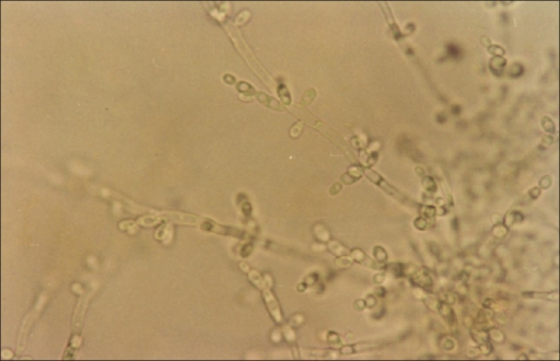 Photomicrograph showing pseudohyphae with scanty irregularly arranged blastopores of C. tropicalis on corn meal Tween 80 agar