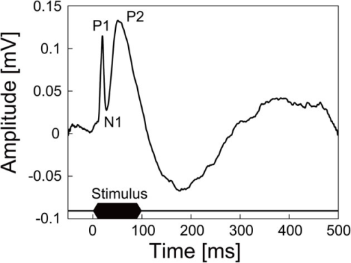 AEP recorded from the auditory cortex of an anesthetized rat by the guide cannula electrode of the microdialysis electrode. The trace shown here is averaged AEP across 100 trials. Auditory stimuli were 100 ms tone bursts of 10 kHz at 80 dB SPL.