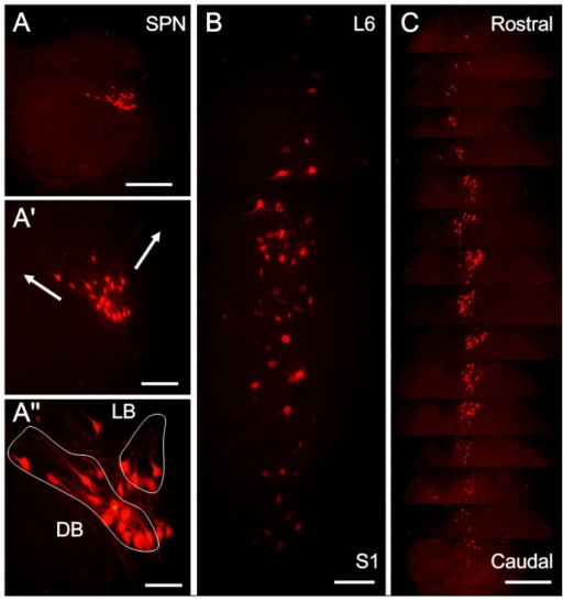 "The distribution patterns of CTb labeled PPNs in the SPN at L6-S1 after CTb was injected into the left pelvic nerve.(A) The location of the CTb-labeled neurons in the SPN at S1. (A′) An enlarged image of (A), showing the extending directions of the dendrites of the CTb-labeled neurons in the lateral band (LB) or dorsal band (DB) (arrows); A″ is also an enlarged image of A, in which CTb-labeled neurons in the SPN belong to 3 groups: DB, LB and internal band (IB) (outside of the two circles). In the longitudinal sections (B), CTb-labeled neuronal clusters in the SPN resemble a ""string of beads."" C: CTb-labeled neurons in the SPN in one rat are arranged in a sequence from the rostral to caudal levels of the nucleus. Scale bars indicate 200 µm in A and C, 100 µm in A′ and B and 50 µm in A″."