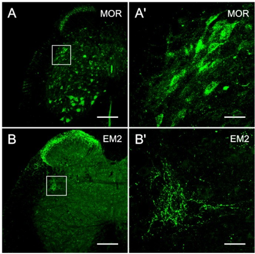 MOR and EM2 immunoreactivity in the SPN.The localization of MOR-immunoreactivity at S1 (A, A′) and EM2-immunoreactivity at L6 (B, B′) in the SPN on transverse sections. A, B: low magnification image. A′, B′: magnified image of the SPN as demarcated with a rectangle in A and B. Many neuronal cell bodies and their dendritic processes in the SPN show MOR-immunopositive staining (A′) and many EM2-IR fibers and terminals are present in the SPN (B′). The scale bars indicate 200 µm in A and B, 30 µm in A′ and B′.