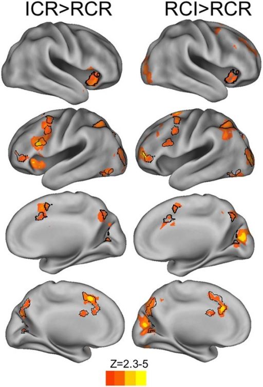BOLD responses to selective vs. global context conditions (red-yellow) and common areas of recruitment (black outlines). Contrasts of RCI and ICR vs. RCR revealed reliable BOLD response across frontal, parietal, and occipital cortex (voxelwise z > 2.3, corrected to p < 0.05 via GRF). The reverse contrasts of RCR > ICR and RCR > RCI, and the direct contrasts of ICR with RCI, failed to reach significance.