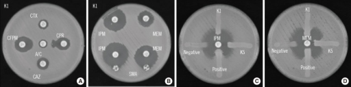 Phenotypic detection of extended spectrum β-lactamase and carbapenemases in the K1 isolate, an imipenem-susceptible meropenem-resistant Klebsiella pneumoniae strain isolated from venous blood. (A) DDST with amoxicillin/clavulanate. K. pneumoniae K1 was inoculated onto the surface of a Muller-Hinton agar plate. Cephalosporin disks were applied at a distance of 20 mm from the clavulanate-containing disk; an enhanced zone of inhibition toward the clavulanate-containing disk was observed. (B) SMA test using IPM and MEM. K. pneumoniae K1 was inoculated onto the surface of a Muller-Hinton agar plate. An SMA disk was placed adjacent to either the IPM or MEM disk; an enhanced zone of inhibition toward the SMA disk was observed. (C) Modified Hodge test using IPM or MEM. E. coli ATCC25922 was inoculated onto the surface of a Muller-Hinton agar plate and organisms (K1, K5, K. pneumoniae ATCC BAA-1705 for positive control and K. pneumoniae ATCC BAA-1706 for negative control) were inoculated as streaks.Abbreviations: A/C, amoxicillin/clavulanate; CTX, cefotaxime; CPR, cefpirome; CAZ, ceftazidime; CFPM, cefepime; DDST, double-disk synergy test; IPM, imipenem; MEM, meropenem; SMA, sodium mercaptoacetic acid.