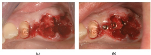 The two molars were extracted and implants positioned.