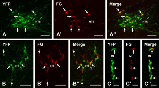 "Spinally projecting YFP-PPG neurons in the brainstem. Double immunofluorescent staining for YFP (green) and FG (red) in the brainstems of YFP-PPG mice that received injections of FG at spinal segment T9. The NTS (A–A""), the IRT (B–B"") and dorsal midline (C–C"") contain YFP-immunofluorescent neurons (A–C), some of which contain FG-immunoreactivity (A', B' and C'). Double labeled neurons are spinally projecting YFP-PPG neurons. A"", B"", C"", merged images of micrographs showing YFP- and FG-immunoreactive neurons in each area. Scale bars: A, B, 100 μm; C, 50 μm. (For interpretation of the references to color in this figure legend, the reader is referred to the web version of this article.)"