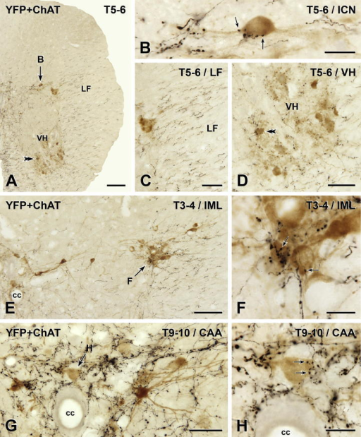 Distribution of YFP-PPG axons in thoracic spinal cord. Two-color immunoperoxidase staining for YFP (black) and ChAT (brown) in transverse sections through the thoracic spinal cord. (A–D) In spinal segments T5–6, there is a high density of rostrocaudally running black YFP-immunoreactive axons in the lateral funiculus (LF; C). There are close appositions between black YFP-immunoreactive varicosities and brown ChAT-immunoreactive sympathetic preganglionic neurons (SPN) in the intercalated nucleus (ICN; B) and brown ChAT-immunoreactive somatic motor neurons in the ventral horn (VH; D). A higher magnification image of the cell body indicated by the double arrowheads in A and D is shown in Fig. 7I. (E and F) Brown ChAT-immunoreactive SPN in the intermediolateral cell column (IML) of T3–4 receive close appositions (arrows) from black YFP-immunoreactive varicosities. (G and H) In the central autonomic area (CAA) at T9–10, black YFP-immunoreactive varicosities (black) also form appositions (arrows) on brown ChAT-immunoreactive SPN. cc, central canal. Micrographs in montages: A and E, 5; B, 6; C and D, 3; F & H, 2; G, 4. Scale bars: A and E, 100 μm; C, D and G, 50 μm; B, F and H, 20 μm. (For interpretation of the references to color in this figure legend, the reader is referred to the web version of this article.)