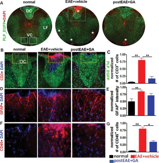 Therapeutic GA reduces inflammation in spinal cords of EAE mice. Representative PLP_EGFP (green) thoracic spinal cord sections costained with DAPI (red) from normal, EAE + vehicle and EAE + GA groups described in Figure 1B, with treatment initiated on peak EAE day 21 (A; ×4 magnification). All animals were sacrificed at EAE post-induction day ∼40. White-dashed perimeters (DC, dorsal column) and boxes (VC, ventral column) denote regions of the spinal cord used for quantification. No inflammatory nuclei are observed in normal controls, whereas vehicle-treated EAE spinal cord shows multifocal to coalescing infiltrates in the leptomeninges. Treatment with 2 mg/day GA for 8 days resulted in fewer DAPI+ cell infiltrates in the lateral funiculus (LF), DC, and VC*. Consecutive PLP_EGFP (green) thoracic spinal cord sections co-immunostained for CD3 (B, red, ×10), GFAP (D, red, ×40), or CD45 (F, red, ×40) are shown from partial images (dashed boxes in B) of normal control, vehicle-treated EAE, and GA-treated EAE mice. Vehicle-treated EAE spinal cords had large areas of CD45+ and GFAP+ cell staining in the DC compared with normal controls, whereas GA-treated EAE mice showed a significant decrease in CD3 and CD45 positivity. Number of CD3+ (C), GFAP+ (E), and CD45+ (G) cells per 400 µm2 or cell intensity within the DC were quantified. Compared with normal controls, treatment with GA induced a decrease in CD3+ and CD45+ cell numbers, but not GFAP+ immunoreactivity. Data are representative of experiments repeated in their entirety on another set of EAE mice. *P < 0.05, **P < 0.001, 1 × 4 ANOVA; n = 6–8 mice/group. [Color figure can be viewed in the online issue, which is available at http://wileyonlinelibrary.com.]