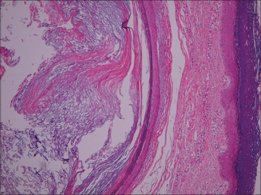 Multiple mid-dermal keratin cysts with granular layer and laminated keratin in the mid-dermis with sparse peri-follicular lymphocytic infiltrate (H and E, ×40)