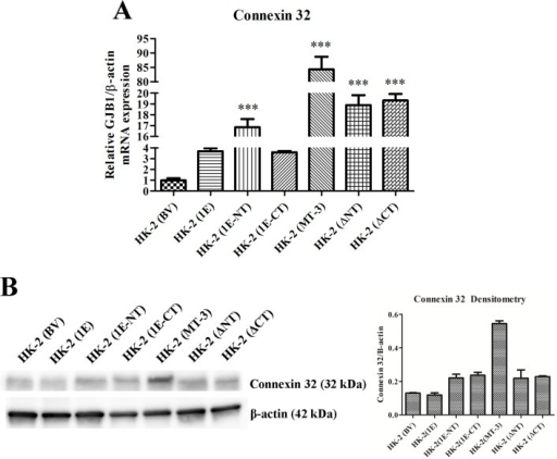 Effect of altered domains of metallothionein-3 on the expression of connexin 32 in HK-2 cells.A) Messenger RNA of connexin 32 assessed with real-time PCR and expressed as fold change in expression versus HK-2 cells transfected with the blank vector. The change in connexin 32 expression was normalized to the change in β-actin expression. Significant differences from HK-2 (BV) are designated as *** p < 0.0001. B) Western analysis of connexin 32 was conducted in identical cultures as in (A). β-actin was used as a loading control and for densitometric normalization. Densitometry is shown beside the corresponding blot.