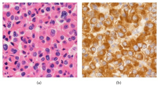 (a) Photomicrograph shows the tumor is composed of monotonous eosinophilic cells. (H&E stain, original magnification ×400.) (b) Positive staining is observed with GH immunohistochemistry. (GH, original magnification ×400.)