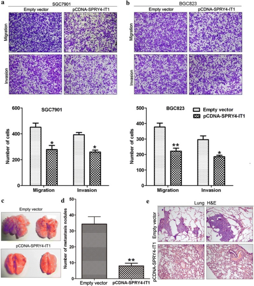 The effect of SPRY4-IT1 on gastric cancer cells invasion and metastasis. a, b Transwell assays were used to investigate the changes in migratory and invasive abilities of BGC823 and SGC7901 cells transfected with pCDNA-SPRY4-IT1 or empty vector. c, d Analysis of an experimental metastasis was performed by injecting SPRY4-IT1-overexpressing BGC823 cells into nude mice. e Visualization of the entire lungs and HE-stained lung sections. *P < 0.05 and **P < 0.01.
