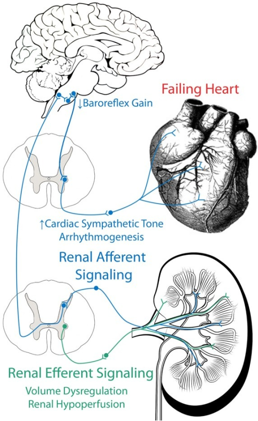 Role Of Efferent And Afferent Renal Nerves In Chf Effe Open I