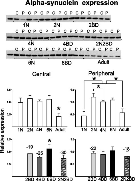 Semi-quantitative Western blotting for alpha-synuclein. Alpha-synuclein had a lower level in both area 17 regions of 2BD kittens and in the central region of the 4BD group as compared to age-matched normal controls. Additionally, a higher level of alpha-synuclein was observed in the central as compared to the peripheral region in 1N kittens. Asterisks above bars denote significant differences (P < 0.05) for a given region between age groups of a given condition (normal or BD). Numbers above BD-related bars denote the % statistical difference between BD and age-matched normal control groups (P < 0.05). Results are means with ± SD