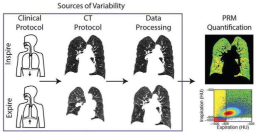 Schematic of modes of variability at various stages in the PRM workflow. Clinical protocol consists of patients being trained to hold their breath at full inspiration and full or relaxed expiration. CT protocol guides acquisition at both points using site-specific CT systems, acquisition parameters, and reconstruction kernels. Data processing consists of lungs from the serial CT scans being segmented from the thoracic cavity and then spatially aligned to a single geometric frame using site-specific algorithms. PRM quantification is performed by classifying voxels with paired HU values as normal parenchyma (green voxels), functional small airways disease (yellow voxels), or emphysema (red voxels).
