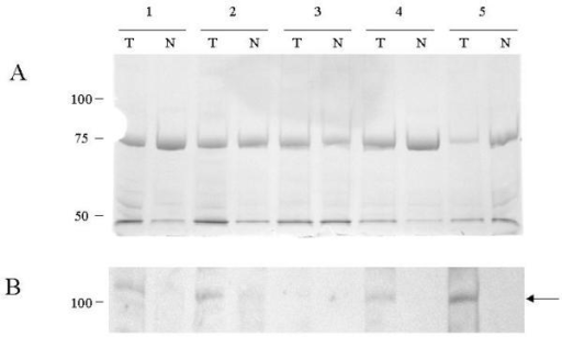 (A) Coomassie stained duplicate gel for loading comparison. (B) Western analysis of EphB4 protein expression in colon tumour (T) and matched normal mucosa (N) from five different patients. The size markers in kDa are shown on the left. The arrow indicates the normal EphB4 protein.