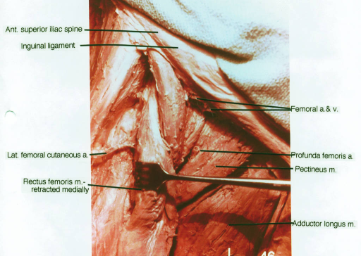 anterior superior iliac spine; inguinal ligament; lateral femoral cutaneous artery; rectus femoris muscle; femoral artery; femoral vein; profunda femoris artery; pectineus muscle; adductor longus muscle