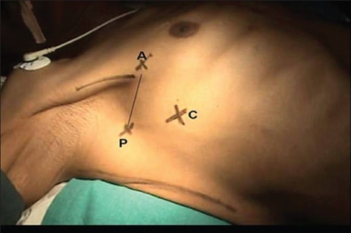 Patient in the supine position with the limb abducted and port sites; A, anterior axillary line in the third intercostals space; P, posterior axillary line along the fourth intercostals space; C, camera port in the fifth intercostals space along the mid-axillary line, point A and P are joined together for a utility mini-axillary thoracotomy