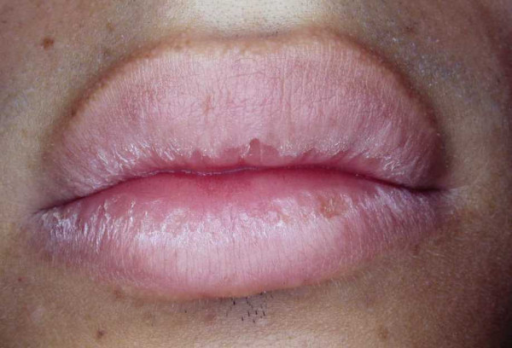 how to know if lips are dry because of fungus