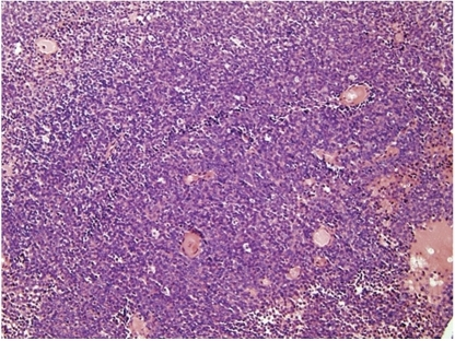 Classical Ewing's sarcoma, microscopic image of typical histomorphology.  The lesion comprises patternless sheets of small blue cells with round, regular nuclei, even nuclear margins, minimal cytoplasm, and indistinct boundaries.