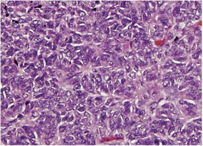 Peripheral primitive neuroectodermal tumor with Homer Wright rosettes.  The rosettes contain a circular wreath of oval nuclei that surround a pale eosinophilic, fibrillary core.