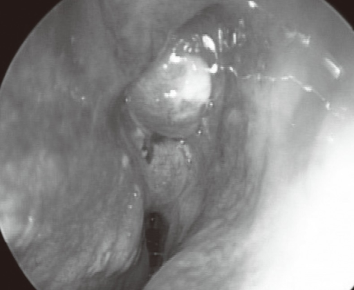 Purulent Drainage Figure 2:Endoscopic En...
