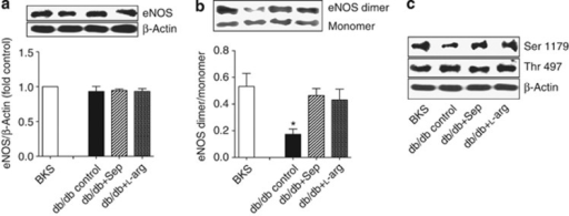 Sepiapterin (Sep) and L-arginine (L-arg) reversed endothelial nitric oxide synthase (eNOS) impairment in db/db mice. (a) No significant differences in glomerular eNOS expression were detected between BKS and db/db mice with or without treatment. (n=4; NS). (b) There was decreased eNOS dimerization in glomeruli from db/db mice, which was corrected by administration of Sep or L-arg (n=4, *P<0.05, compared with wild-type or treated groups). (c) There was decreased eNOS phosphorylation at Ser1179, but not at Thr479, in glomeruli from db/db mice and normalization by Sep/L-arg treatment. Representative photo was from three independent experiments.