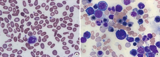 (A) Marked anisopoikilocytosis, including elliptocytosis, schistocytes, and teardrop cells, on a peripheral blood smear. (B) Bone marrow aspirates showing hypercellularity and erythroid hyperplasia (Wright-Giemsa Stain, ×1,000).
