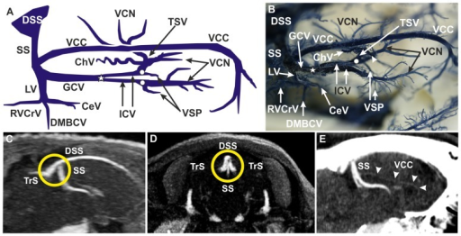 Deep Cerebral Venous Systema Schematic Drawing Of Co Open I