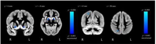 "FSL-VBM results from the contrast ""MA > Control"", where GMD is greater for MA-dependent in comparison to control participants within the right and left putamen (left) and right superior lateral occipital cortex (right), puncorrected < 0.001."