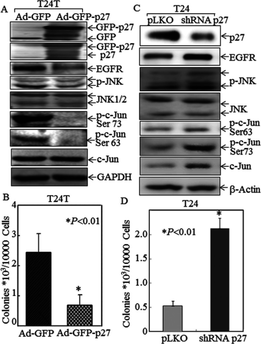 Inhibitory effect of p27Kip1 on JNK/c-Jun phosphorylation, EGFR expression and anchorage-independent growth in T24 and T24T cells(A) T24T cells were infected with Ad-GFP or Ad-GFP–p27, and then extracted for determination of protein expression by Western blotting. (B) T24T cells were infected with Ad-GFP or Ad-GFP–p27, and then subjected to determination of anchorage-independent growth in soft agar assay. The asterisk (*) indicates a significant decrease in anchorage-independent growth of T24T cells infected with Ad-GFP–p27 compared with those infected with Ad-GFP (P<0.01). (C) T24 cells were stably transfected with shRNA p27 and the cell extracts were subjected to Western blotting for determination of p27 knockdown in regulating JNK, p-c-Jun and EGFR expression, as compared with those transfected with control vector pLKO. (D) T24 cells were stably transfected with shRNA p27 or pLKO and then subjected to anchorage-independent growth. The asterisk (*) indicates a significant increase in anchorage-independent growth of T24 cells transfected with shRNA p27 compared with T24 cells transfected with pLKO (P<0.01).