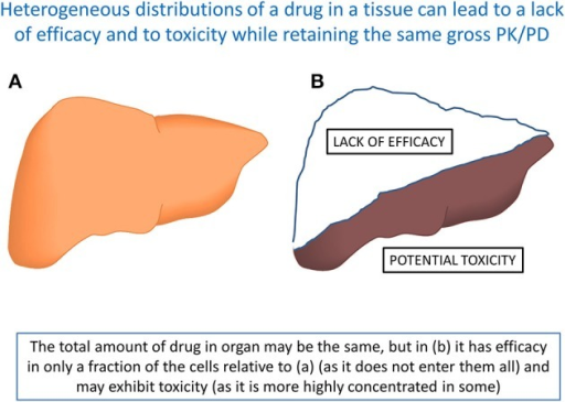 A set of circumstances in which two otherwise identical organs, that take up the same total amount of a drug and may have indistinguishable PK/PD, nevertheless display entirely different behaviors because of the intercellular heterogeneity. Organ (A) may display favorable efficacy and toxicity profiles, while in organ (B) shows both a lack of efficacy (in at least part of the organ) and toxicity (in another part). Note that the total amount of tissue is the same in (A,B). Such phenomena may well underlie the two most common causes of attrition (Cook et al., 2014).
