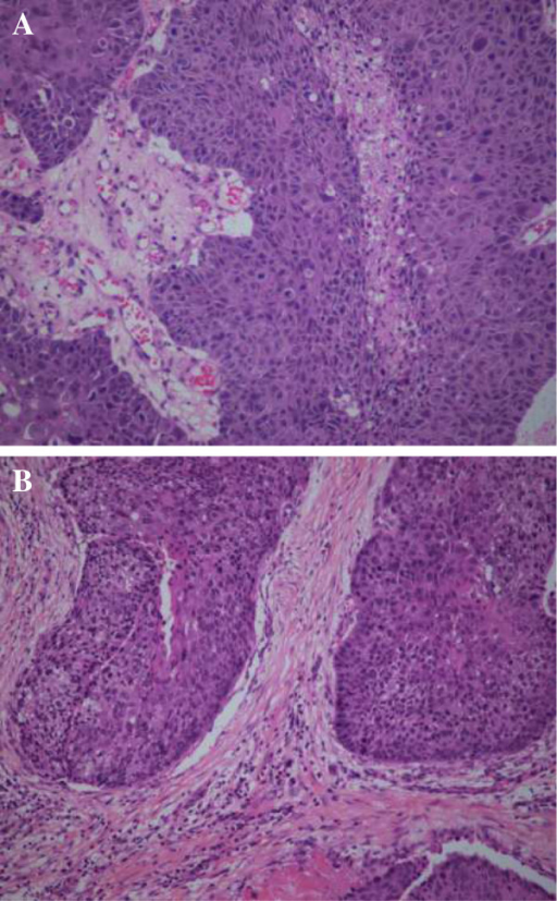 Histopathological specimen images. Nasopharynx specimen (A) showing squamous cell carcinoma with morphology similar to that of the primary lesion of the trachea (B).
