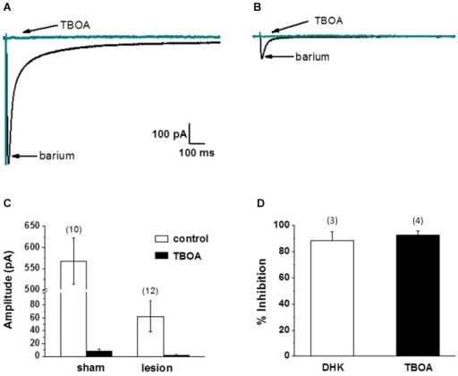 Synaptically evoked glutamate transporter currents (STCs) are markedly reduced in astrocytes in lesioned animals. (A) Specimen records showing evoked responses from a L2/3 astrocyte in a slice from a sham-operated animal following stimulation in cortical L4/5. Responses before and after bath application of TBOA are shown superimposed. TBOA effectively blocked the response. Each trace is average of ten consecutive responses. Experiments were performed in the presence of BaCl2 (100 µM) to inhibit a K+ uptake currents. (B) Similar to A, but from an astrocyte in a slice from a lesioned animal. Specimen records show that responses were smaller in amplitude relative to controls. Responses were TBOA sensitive. (C) Summary plots showing differences in STCs between astrocytes in slices from sham-operated and lesioned animals. STCs were significantly smaller in astrocytes from lesioned slices relative to astrocytes from sham-operated animals. (D) TBOA inhibited 92.8 +/− 3.3% (n = 4) of STC mediated currents while 88.6 +/− 6.7% (n = 3) of current was inhibited by DHK.