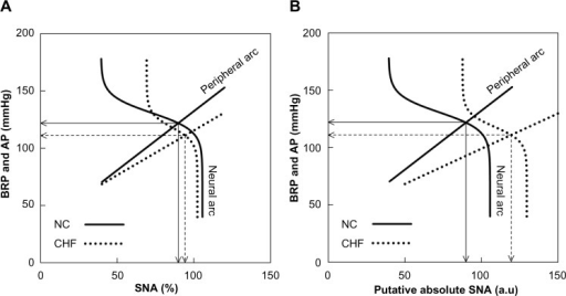 (A) Baroreflex equilibrium diagrams of normal control (NC) and chronic heart failure (CHF) constructed using mean parameter values of the neural and peripheral arcs in our previous study.16 In the neural arc of NC, the response range of SNA is 66.2%, the slope coefficient is 0.13 mmHg−1, the midpoint input pressure is 130.8 mmHg, and the lower plateau of SNA is 39.4%. In the peripheral arc of NC, the slope is 1.03 mmHg/% and the intercept is 29.3 mmHg. In the neural arc of CHF, the response range is 33.1%, the slope coefficient is 0.16 mmHg−1, the midpoint input pressure is 118.1 mmHg, and the lower plateau of SNA is 69.2%. In the peripheral arc of CHF, the slope is 0.78 mmHg/% and the intercept is 37.5 mmHg. (B) Baroreflex equilibrium diagrams of NC and CHF when the SNA axis for the CHF group was scaled so that the slope of the peripheral arc in CHF relative to that in NC became 0.6.Notes: Solid arrows indicate the operating point in NC. Dashed arrows indicate the operating point in CHF.Abbreviations: AP, arterial pressure; au, arbitrary units; BRP, baroreceptor pressure; SNA, sympathetic nerve activity.
