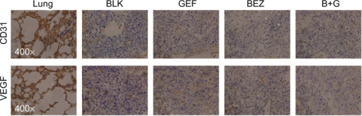 BEZ235 combination with gefitinib reduced VEGF and CD31 expression in vivo.Note: Immunohistochemistry of CD31 and VEGF was performed for tumors treated with gefitinib, BEZ235, and their combination.Abbreviations: B+G, NVP-BEZ235 combination with gefitinib; BEZ, NVP-BEZ235; BLK, blank control; CD, cluster of differentiation; GEF, gefitinib; VEGF, vascular endothelial growth factor.