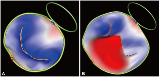Mitral valve reconstruction in a normal subject (A) and in a patient with severe mitral regurgitation due to P2 scallop flail and prolapse and P3 scallop prolapse (B). The parts of the mitral valve which are below the mitral annulus plane (i.e., on the ventricular side) are color-coded in blue, while the parts which are above annulus are coded in red. Of note, the shape of the mitral annulus changes in MR, becoming circular (B), compared to the oval shape of the normal mitral annulus (A). MR: metral regurgitation.